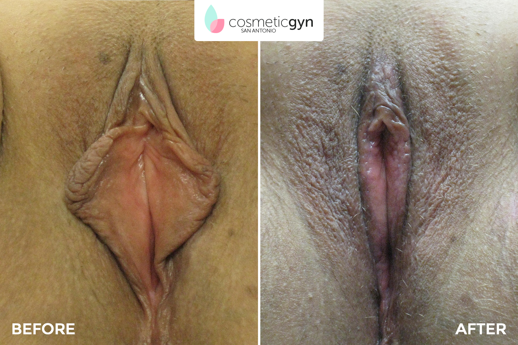 Labiaplasty Patient 2
