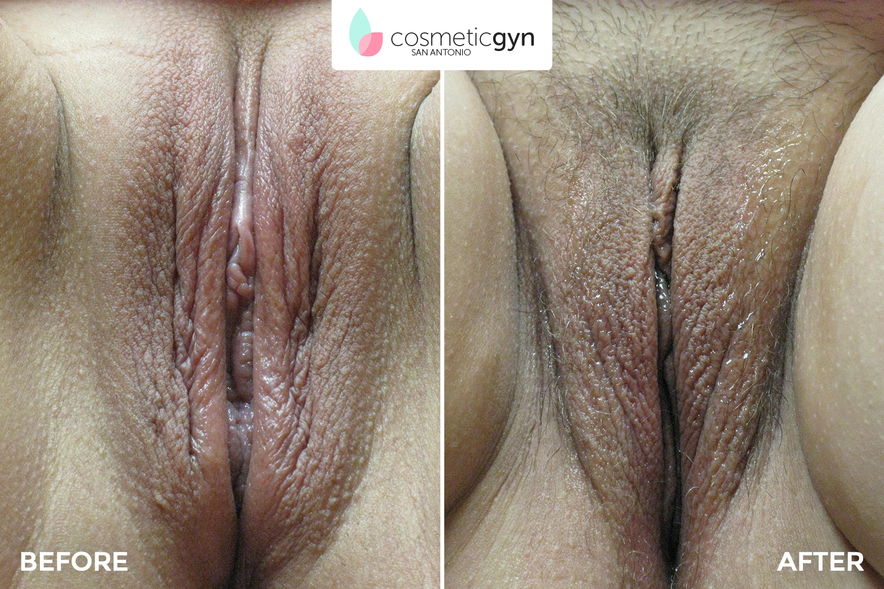 Vagina before and after porn surgery 12