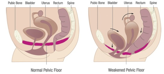 Pelvic relaxation is a weakening of the supportive muscles and ligaments of the pelvic floor. Read about symptoms and treatment of pelvic relaxation.